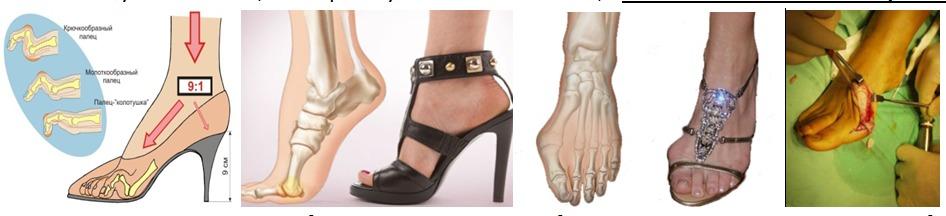 высокий подъем ноги фото какую обувь носить временем отношения между
